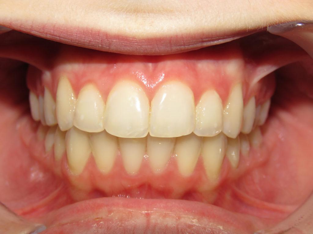 Before & After - Kersten Orthodontics
